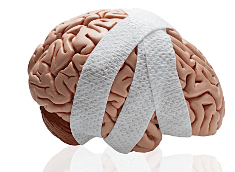Have You Suffered Anoxic Brain Injury in Louisiana?