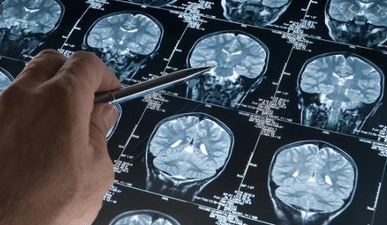 brain injury caused by violence