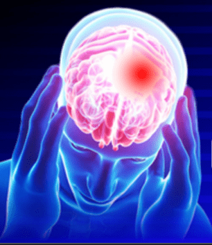 Can Traumatic Brain Injuries Cause PTSD and Depression?